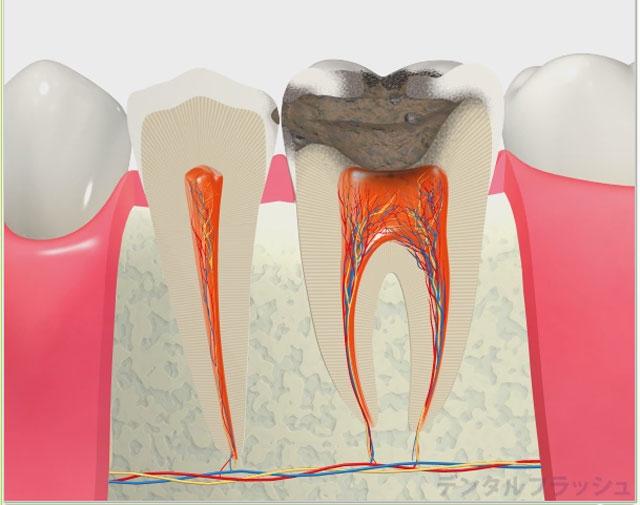 治療 虫歯