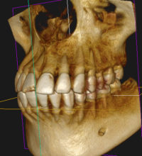 CTと矯正用レントゲン装置(セファロ)