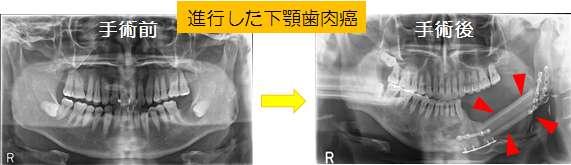 進行した下顎歯肉癌の術前・術後